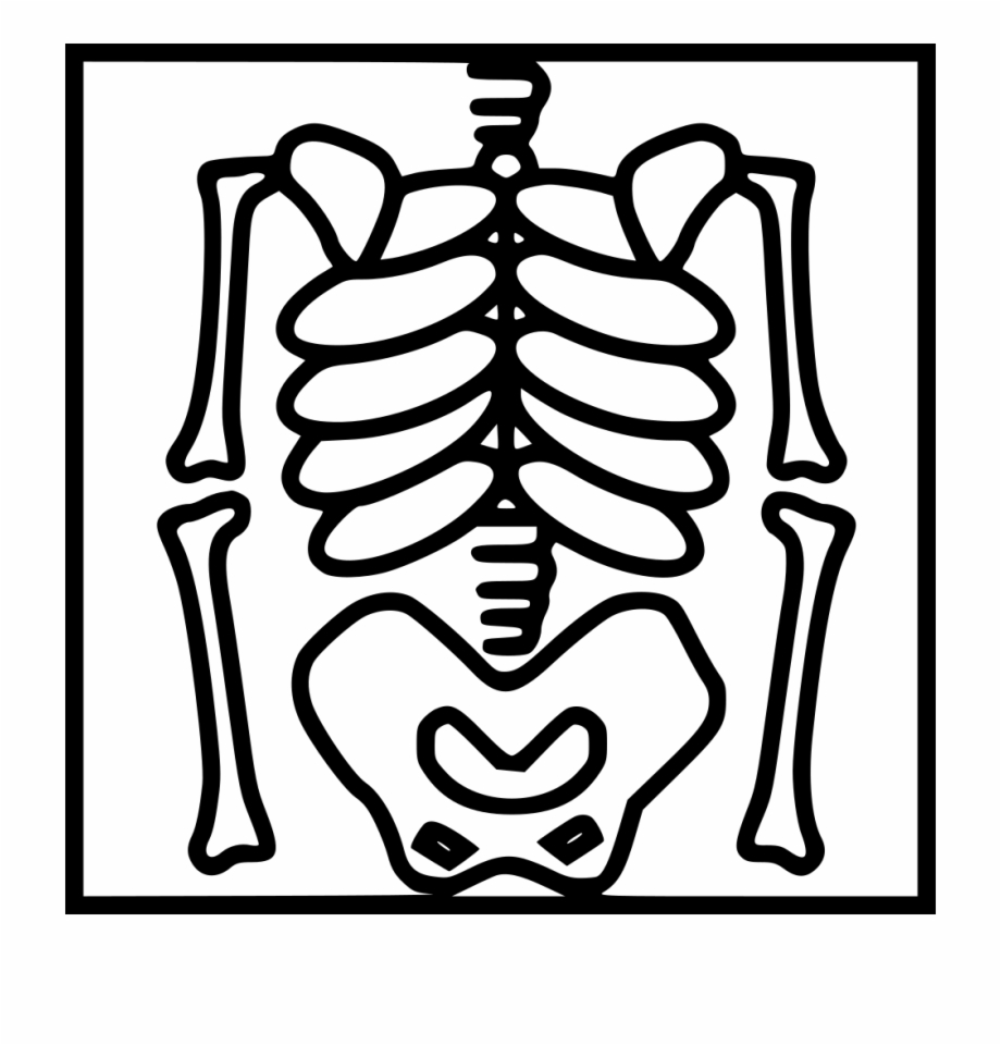 Png File Drawing Picture Of X Ray Transparent Png Download 15897 Vippng