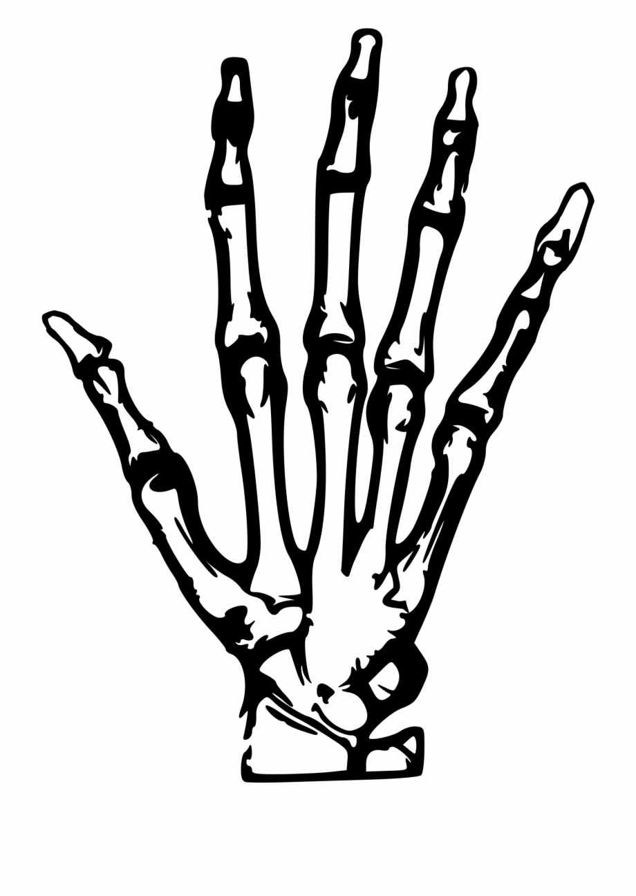 This Free Icons Png Design Of Hand X Ray Hand X Ray Drawing Transparent Png Download 1091242 Vippng